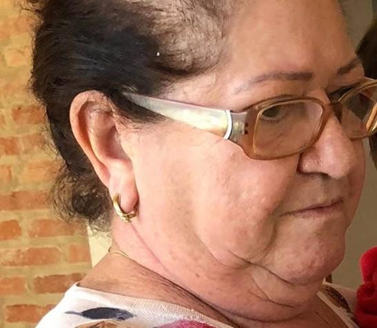 Reprodução/Redes Sociais - Odete faleceu aos 67 anos em Prudente