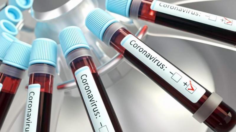 Arquivo -Quantidade de infectados chegou a 9.428 na região
