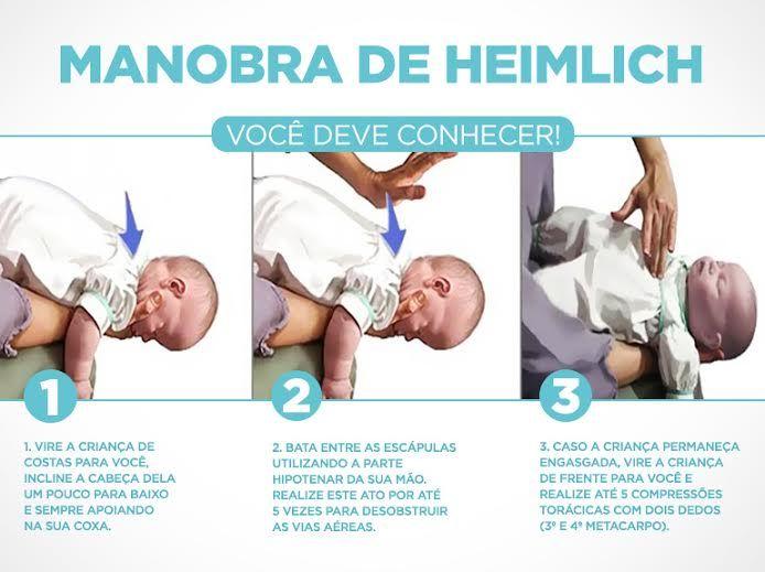 Manobra de Heimlich realizada em bebês