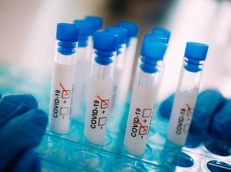 Reprodução -  Na região, há 221 casos suspeitos da doença