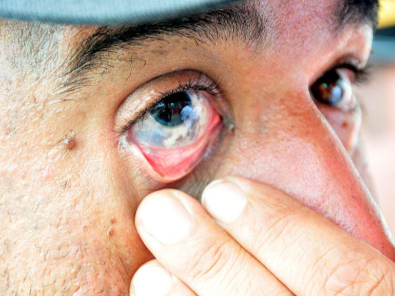 Arquivo - Olhos vermelhos e aumento da secreção ocular estão entre sintomas